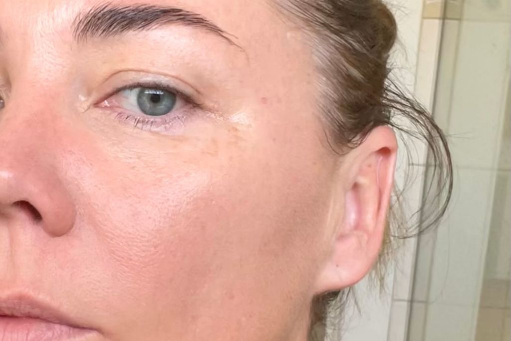 What can skin needling be used to treat?